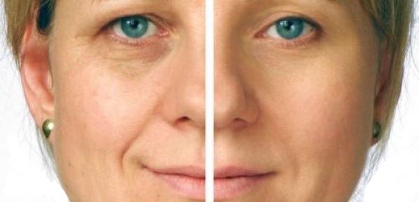 Trattamento viso - microdermoabrasione
